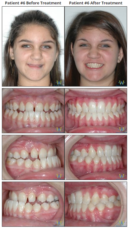 12 year old female with Class III underbite, bilateral posterior crossbite  and blocked out permanent upper cuspid teeth.