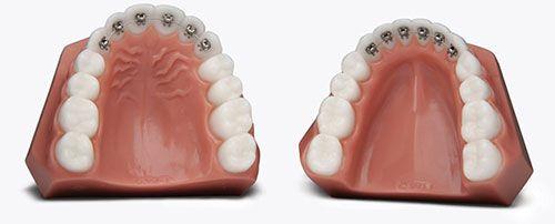 lingual braces in suwanee ga