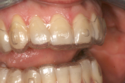 invisalign mid course correction suwanee ga