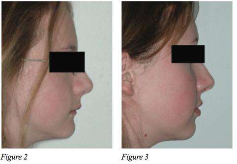 Do braces ruin your face