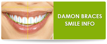 damon braces in suwanee ga