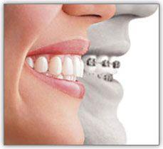 invisalign orthodontist cumming ga