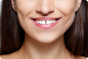 cumming ga orthodontist